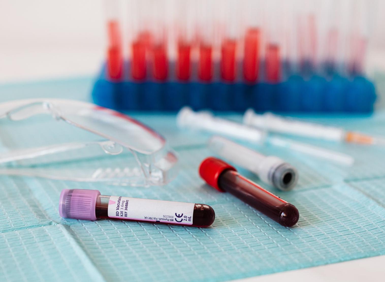 Malattie cardiovascolari: come leggere le analisi del sangue?